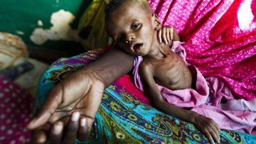 Yunis, un bébé somalien de quatre mois affamé, dans les bras de sa mère.